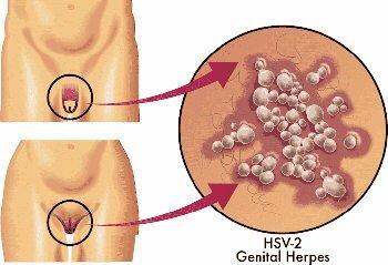 Aciclovir (creme ou comprimidos) também trata herpes genital em homens e mulheres